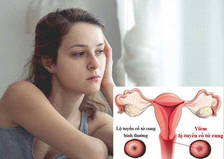 Cần hiểu rõ bệnh viêm lộ tuyến cổ tử cung