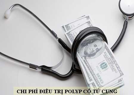 chi phí điều trị polyp cổ tử cung