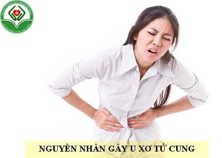 nguyên nhân gây u xơ tử cung