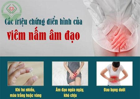 Triệu chứng viêm âm đạo do nấm