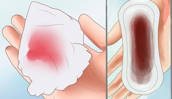 xuất huyết âm đạo