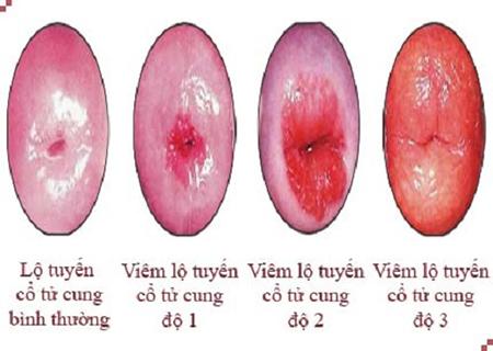 các giai đoạn của viêm lộ tuyến cổ tử cung