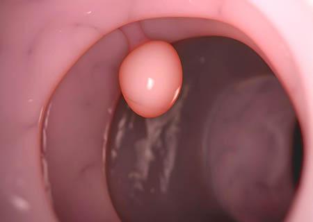 polyp cổ tử cung là gì