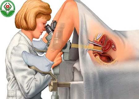 Thế nào là sinh thiết polyp cổ tử cung