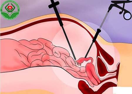 xoắn polyp cổ tử cung là gì