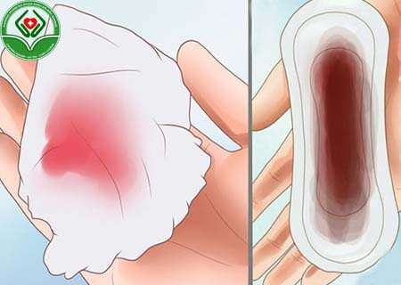 Màng trinh bị rách dễ bị chảy máu