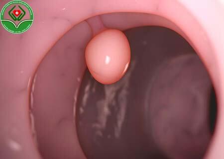 Xoắn polyp cổ tử cung là gì?