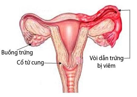 Viêm vòi trứng là bệnh nguy hiểm của các chị em