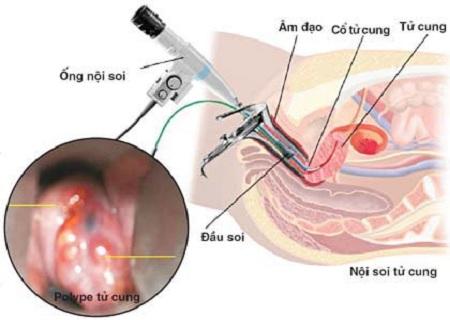 Nội soi âm đạo, cổ tử cung có đau không? Có ảnh hưởng gì không?
